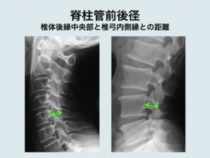 症 狭窄 脊柱 管